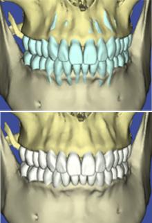 Individanpassad behandlingsplanering med käkbenets begränsning som utgångspunkt.