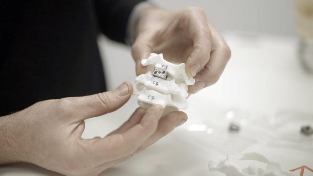 Så ska 3d-print hjälpa ryggradspatienter