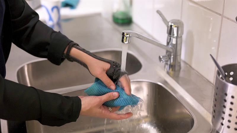 Med det 3d-printade gipset kunde Pia tvätta händerna som vanligt. Foto: