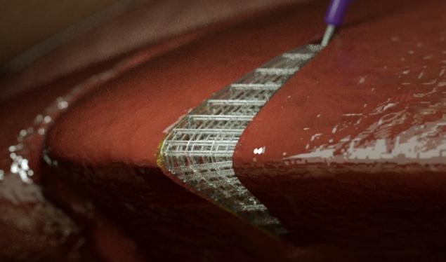 En gitterställning som är 3d-printad direkt på mjuk levande vävnad. Foto via Ohio State University.
